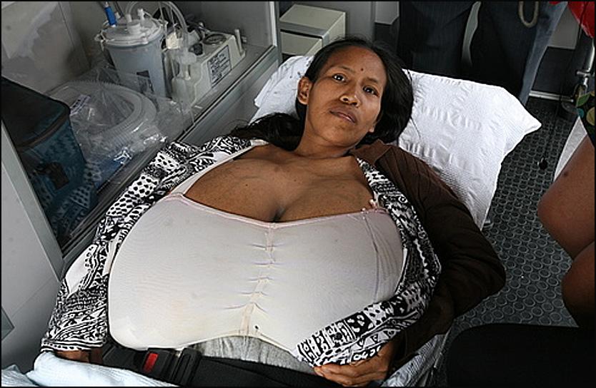 Объем ее грудей составляет 1,79 м. Вес каждой груди около 13 кг. У Джилии