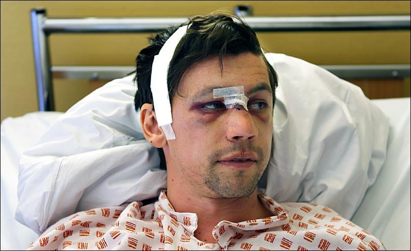 Ouch! Kenneth Dokken (Sandefjord) gets his face destroyed by Kjetel Berge (Sarpsborg 08)
