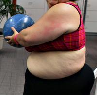 overvektig og gravid
