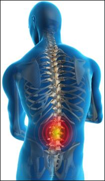 prolaps i ryggen